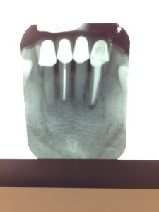 My redone root canal